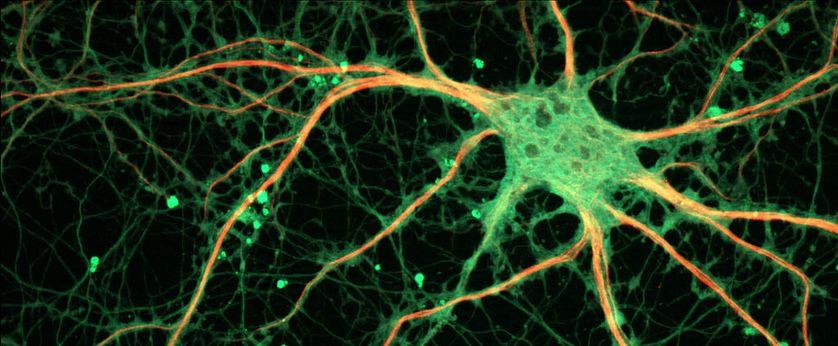 Cultured Rat Hippocampal Neuron.